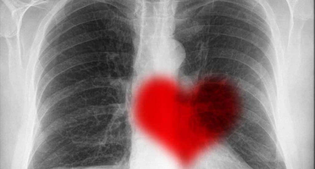 Radiology Heart
